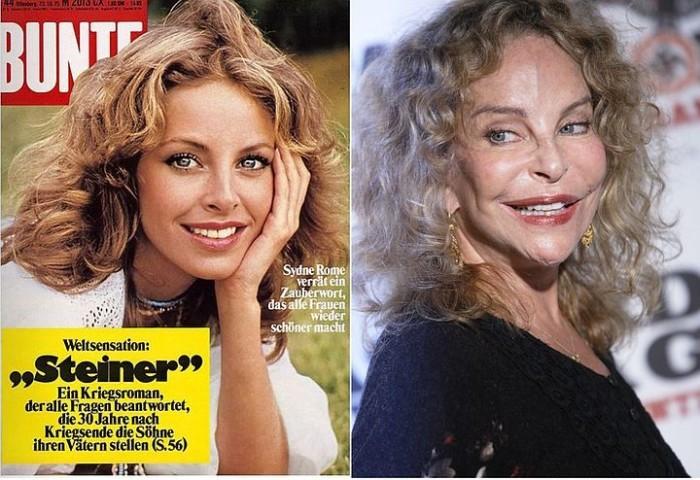 8 знаменитых красавиц, которые в погоне за красотой изменились до неузнаваемости